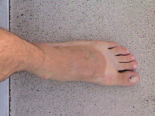 Foot Tan Line